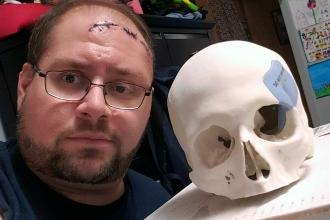 Staten Island Technical HS teacher Joe Buro with the 3D replica of his skull that he uses in his computer-aided design class.